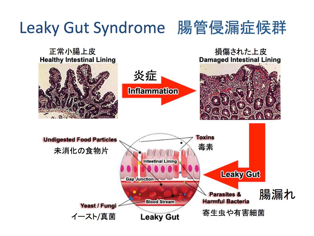 腸管侵漏症候群